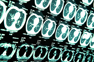 brain-injuries-inner