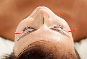 acupuncture-what-to-expect-inner
